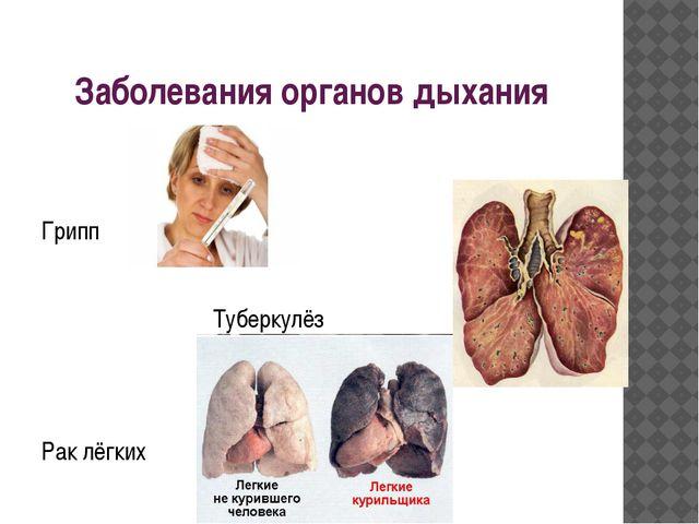 Заболевания органов дыхания Грипп Туберкулёз Рак лёгких