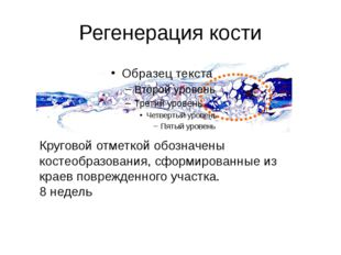 Регенерация кости Круговой отметкой обозначены костеобразования, сформированн