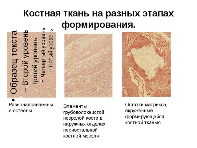 Костная ткань на разных этапах формирования. Разнонаправленные остеоны Элеме...