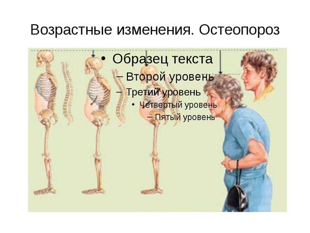 Возрастные изменения. Остеопороз