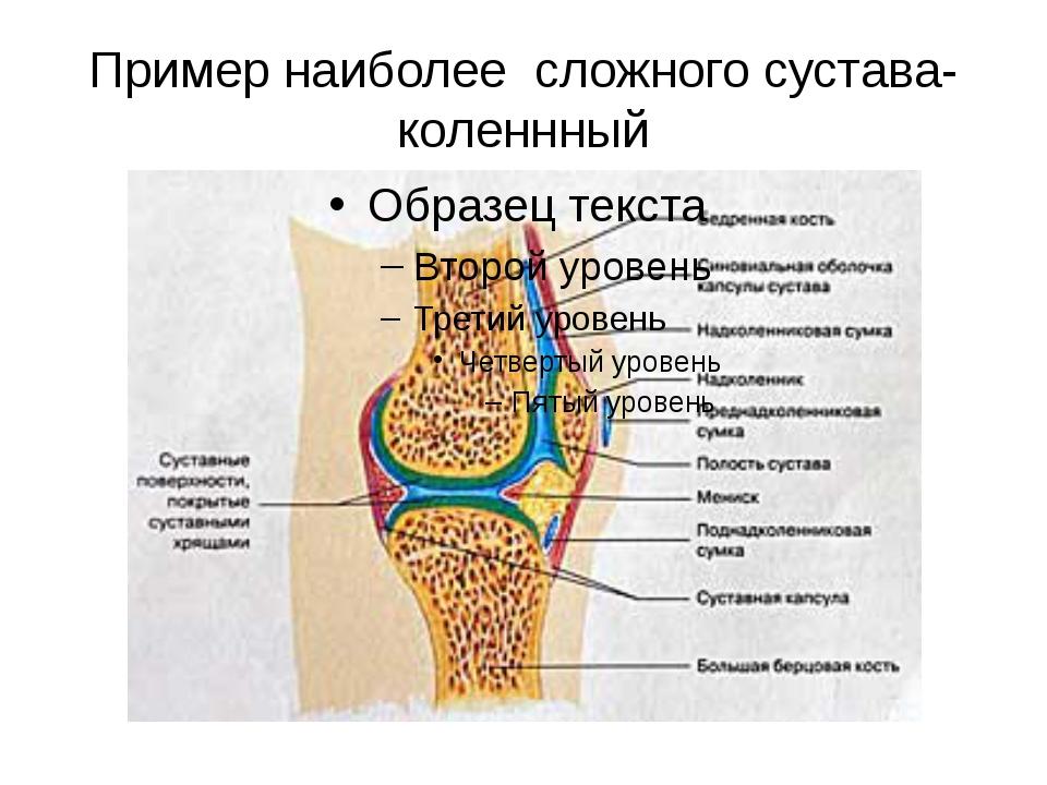 Пример наиболее сложного сустава- коленнный