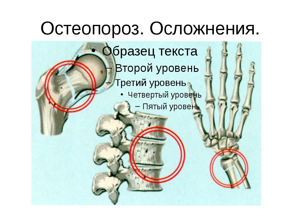 Остеопороз. Осложнения.