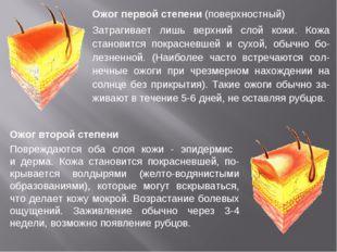 Ожог первой степени (поверхностный) Затрагивает лишь верхний слой кожи. Кожа