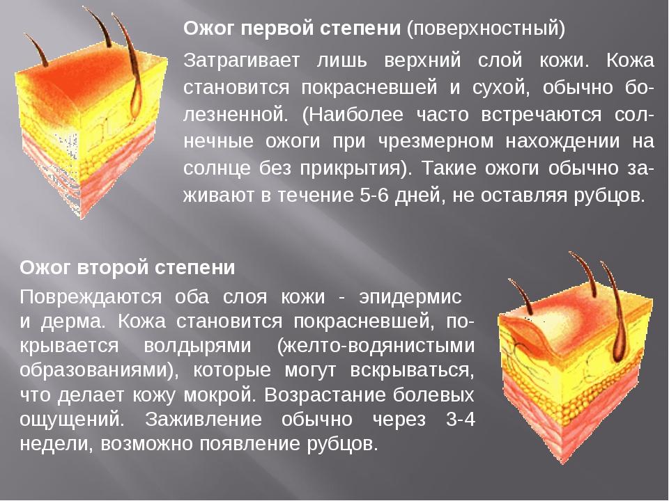 Ожог первой степени (поверхностный) Затрагивает лишь верхний слой кожи. Кожа...