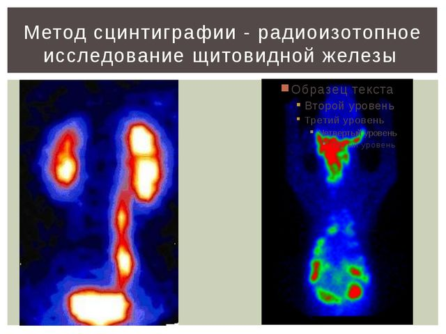 Метод сцинтиграфии - радиоизотопное исследование щитовидной железы