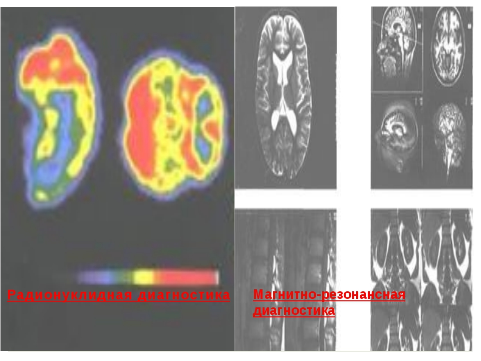 Радионуклидная диагностика Магнитно-резонансная диагностика