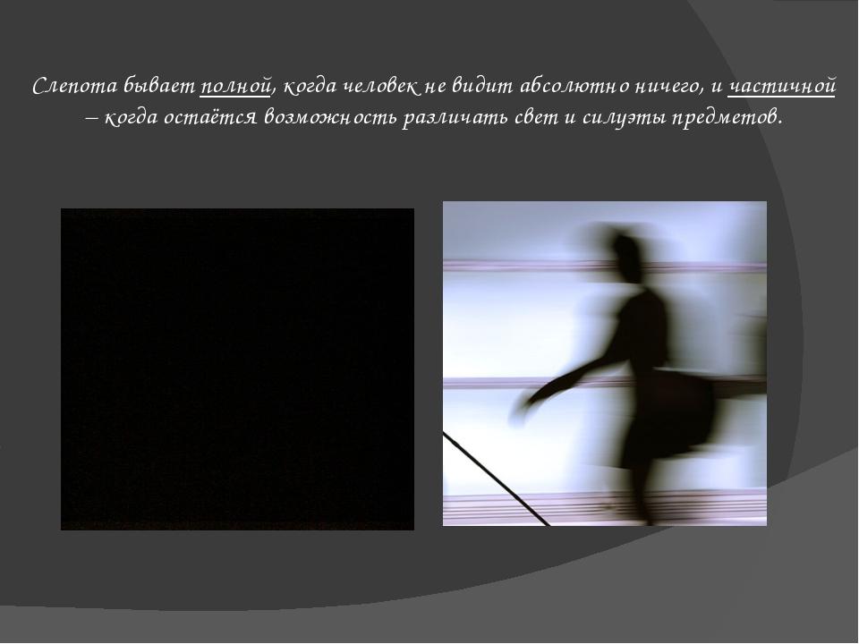 Слепота бывает полной, когда человек не видит абсолютно ничего, и частичной –...