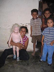 https://upload.wikimedia.org/wikipedia/commons/thumb/8/8b/Albino_girl_honduras.jpg/220px-Albino_girl_honduras.jpg