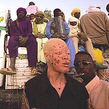 https://upload.wikimedia.org/wikipedia/commons/thumb/c/c9/Albino_man_from_niger.jpg/220px-Albino_man_from_niger.jpg