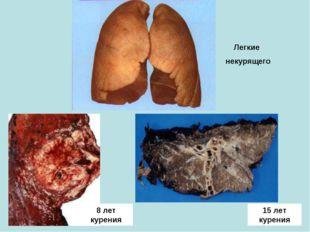 15 лет курения 8 лет курения Легкие некурящего