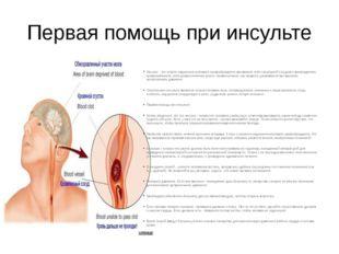 Первая помощь при инсульте Инсульт - это острое нарушение мозгового кровообра