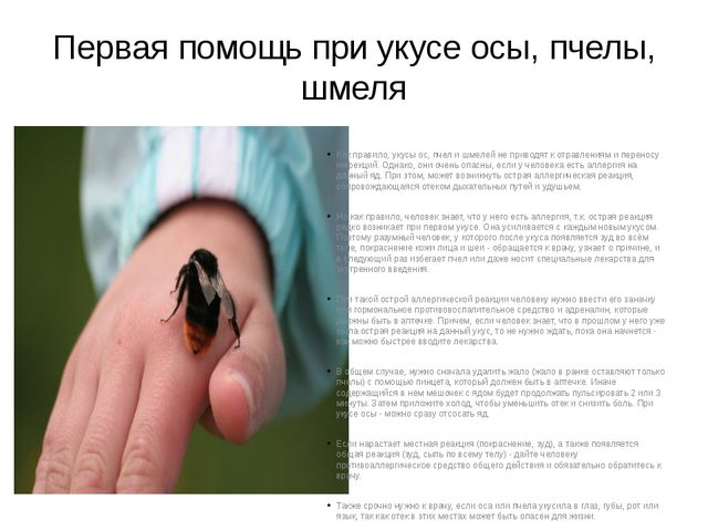 Первая помощь при укусе осы, пчелы, шмеля Как правило, укусы ос, пчел и шмеле...
