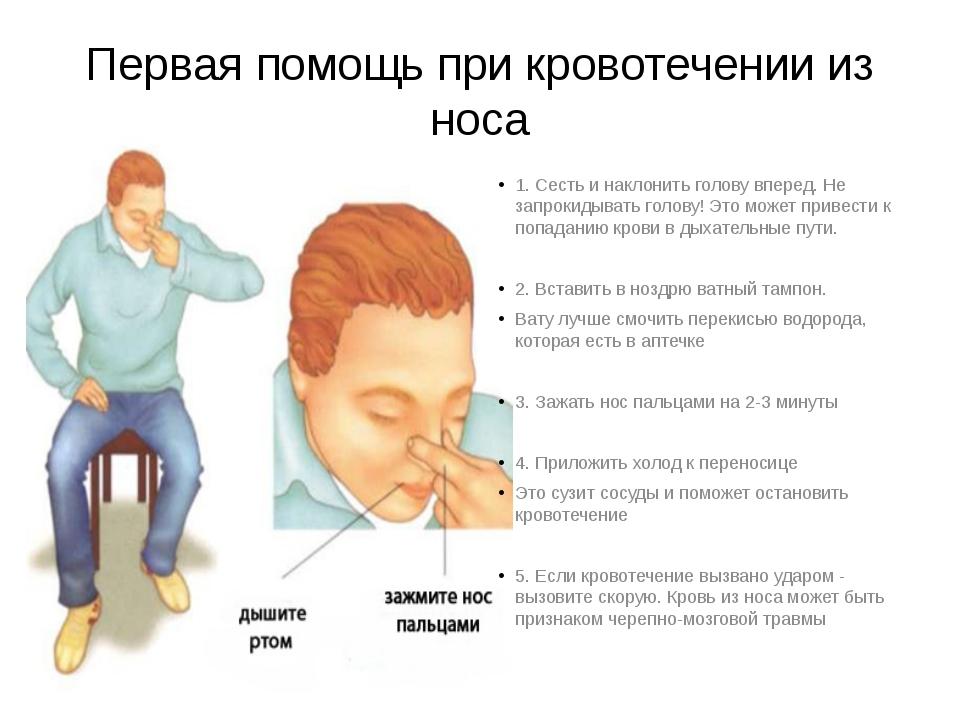Первая помощь при кровотечении из носа 1. Сесть и наклонить голову вперед. Не...