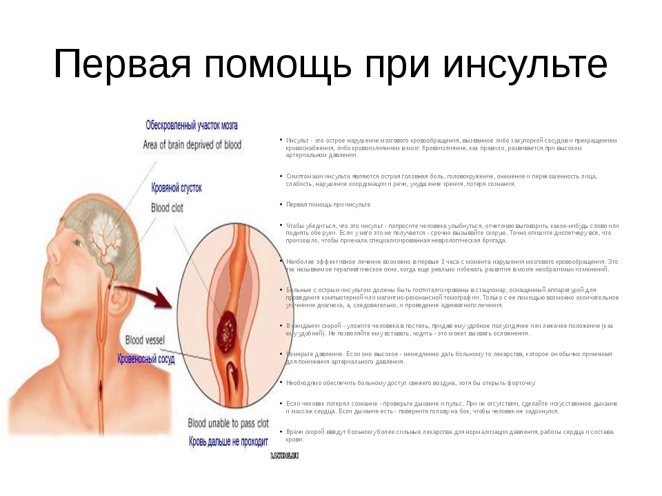 Первая помощь при инсульте Инсульт - это острое нарушение мозгового кровообра...