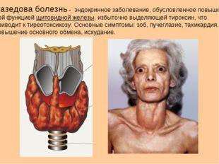 Базедова болезнь - эндокринное заболевание, обусловленное повышен- ной функци