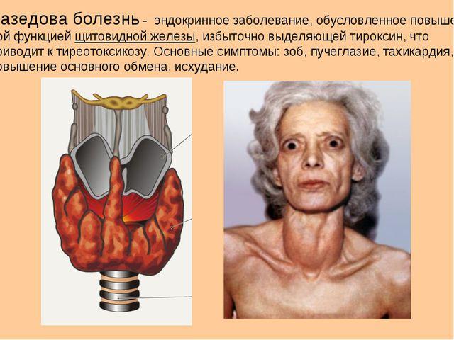 Базедова болезнь - эндокринное заболевание, обусловленное повышен- ной функци...