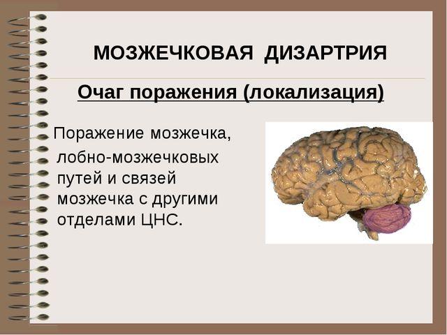 Поражение мозжечка, МОЗЖЕЧКОВАЯ ДИЗАРТРИЯ Очаг поражения (локализация) лобно-...
