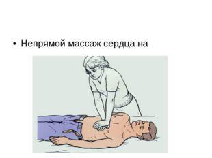 Непрямой массаж сердца на