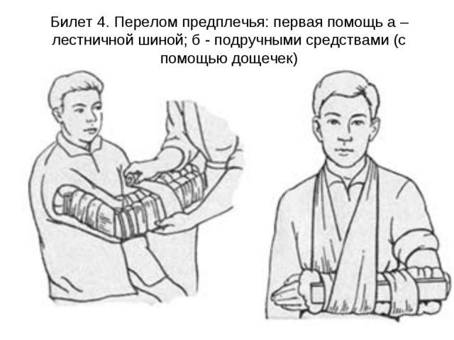 Билет 4. Перелом предплечья: первая помощь а – лестничной шиной; б - подручны...