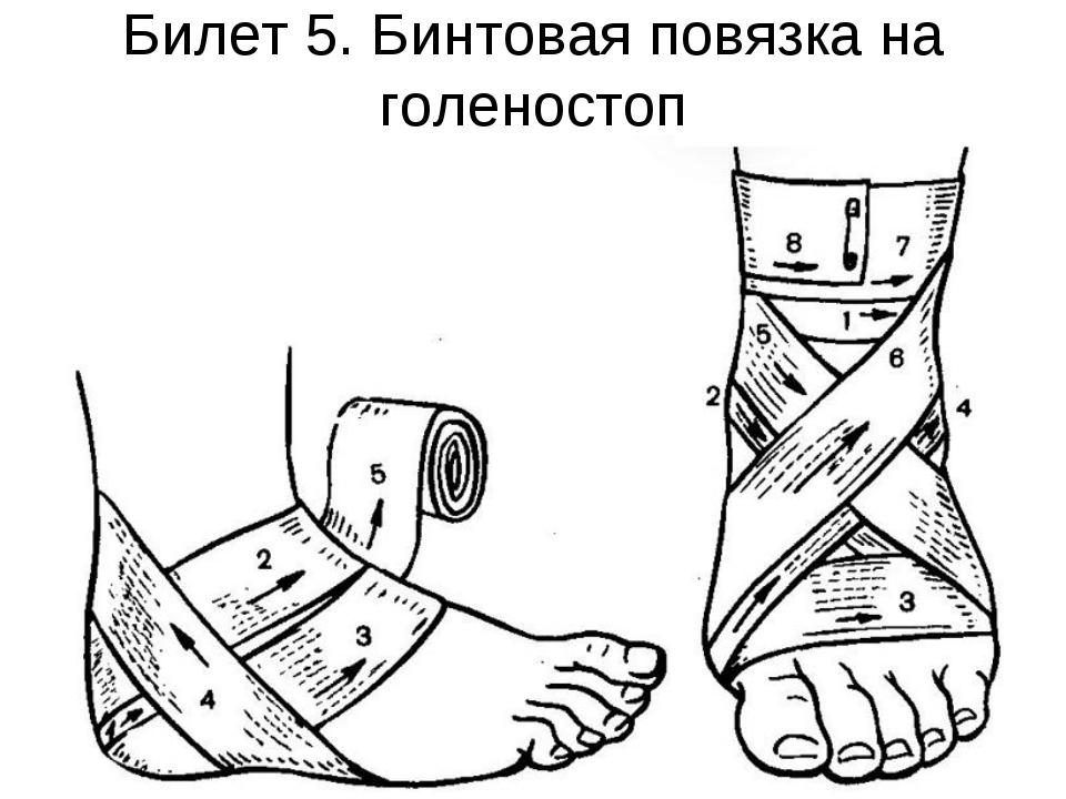 Билет 5. Бинтовая повязка на голеностоп