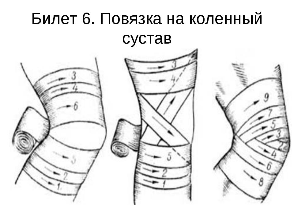 Билет 6. Повязка на коленный сустав