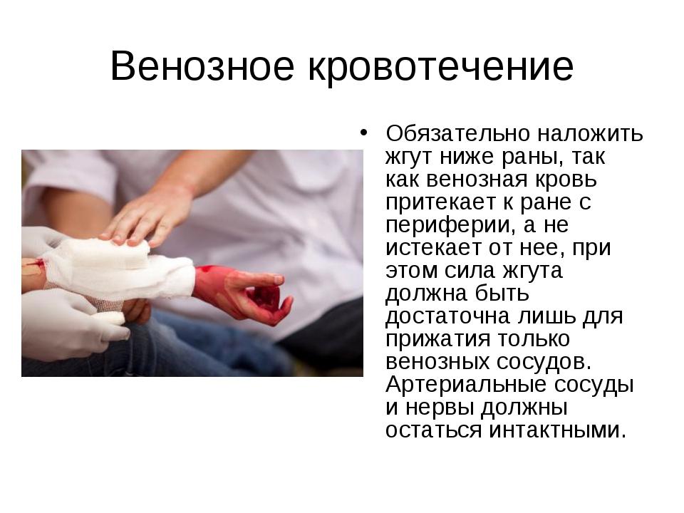 Венозное кровотечение Обязательно наложить жгут ниже раны, так как венозная к...