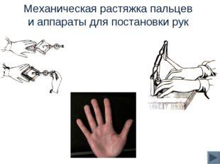 Механическая растяжка пальцев и аппараты для постановки рук