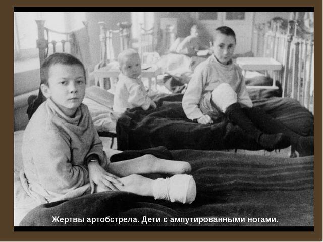 Жертвы артобстрела. Дети с ампутированными ногами.