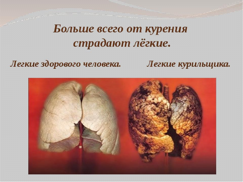 Больше всего от курения страдают лёгкие. Легкие здорового человека. Легкие ку...