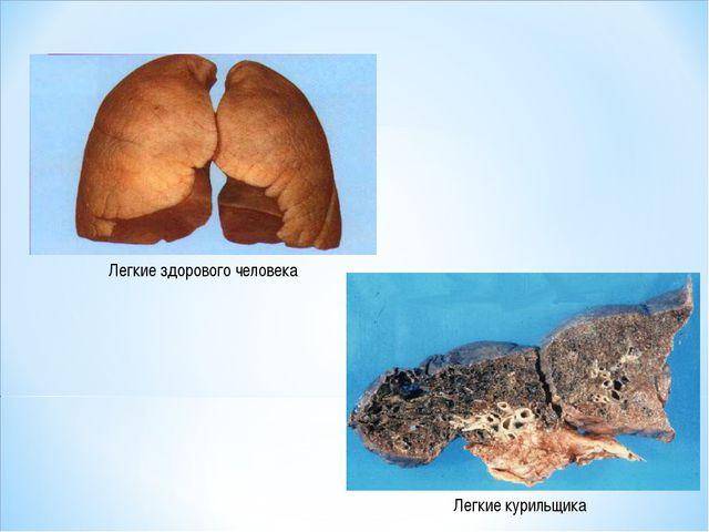 Легкие здорового человека Легкие курильщика