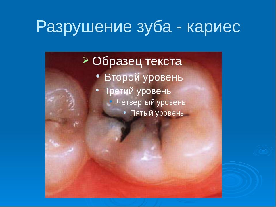 Разрушение зуба - кариес