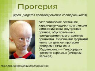 http://l.foto.radikal.ru/0612/08e0016d1d34.jpg (греч. progērōs преждевременно