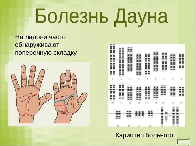 Кариотип больного На ладони часто обнаруживают поперечную складку