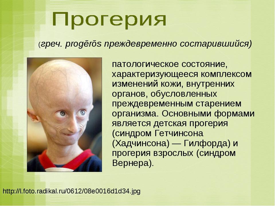 http://l.foto.radikal.ru/0612/08e0016d1d34.jpg (греч. progērōs преждевременно...