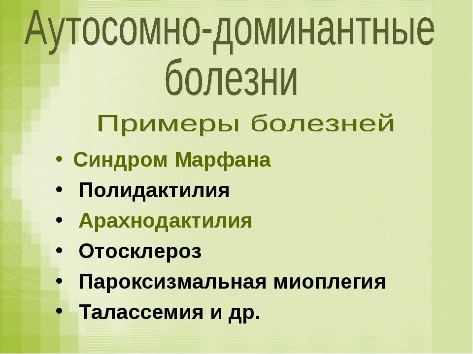 Синдром Марфана Полидактилия Арахнодактилия Отосклероз Пароксизмальная миопле...