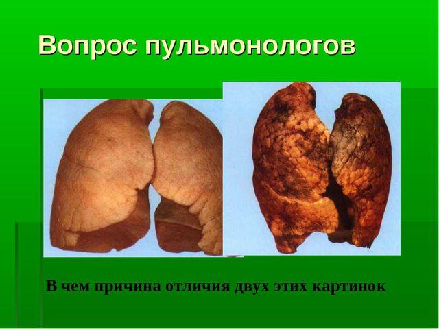Вопрос пульмонологов В чем причина отличия двух этих картинок