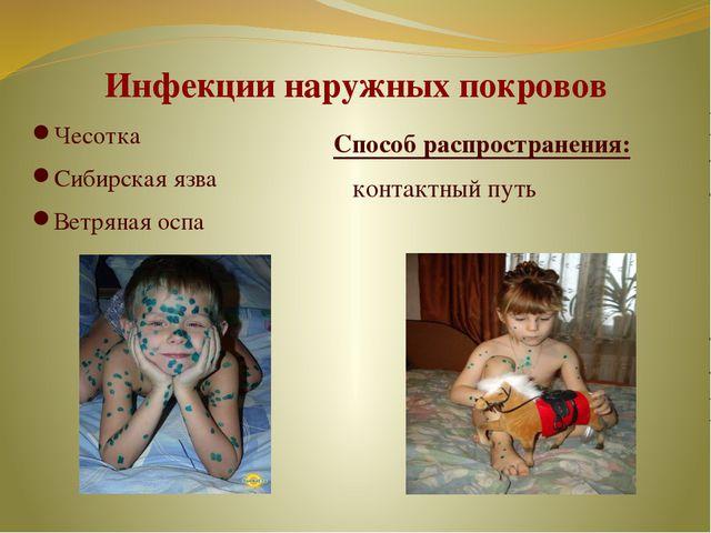Инфекции наружных покровов Чесотка Сибирская язва Ветряная оспа Способ распро...