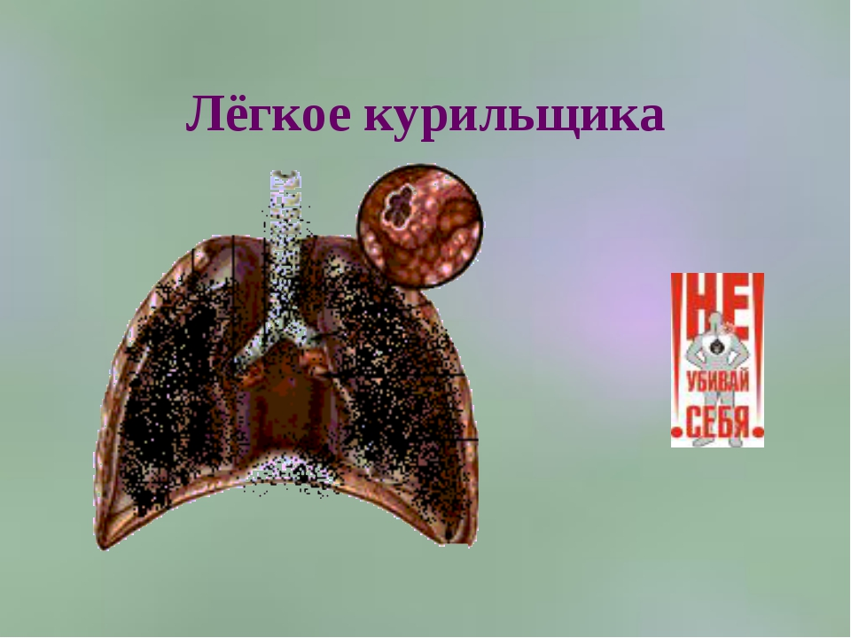 Лёгкое курильщика