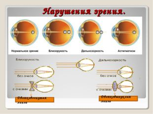 Нарушения зрения. Двояковогнутая линза Двояковыпуклая линза