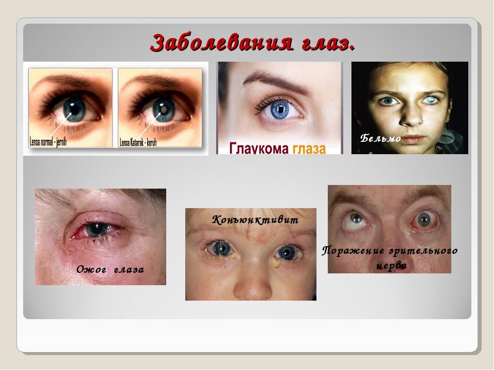 Заболевания глаз. Ожог глаза Конъюнктивит Поражение зрительного нерва Бельмо