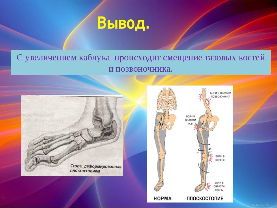 Вывод. С увеличением каблука происходит смещение тазовых костей и позвоночника.