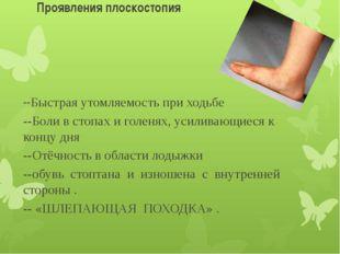 Проявления плоскостопия --Быстрая утомляемость при ходьбе --Боли в стопах и г