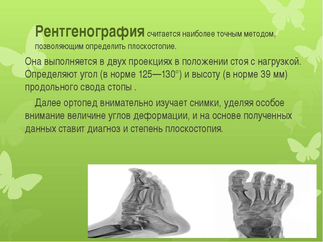 Рентгенография считается наиболее точным методом, позволяющим определить плос...