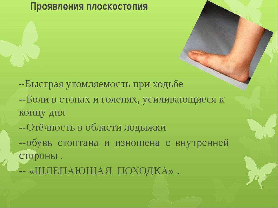Проявления плоскостопия --Быстрая утомляемость при ходьбе --Боли в стопах и г...