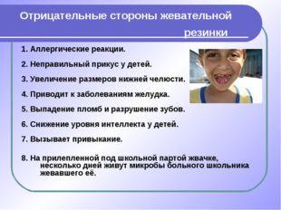 Отрицательные стороны жевательной резинки 1. Аллергические реакции. 2. Неправ