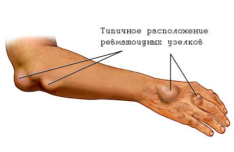 reumatism-local.jpg