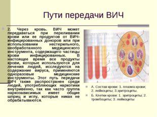Пути передачи ВИЧ 2. Через кровь. ВИЧ может передаваться при переливании кро