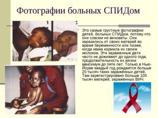 Фотографии больных СПИДом Это самые грустные фотографии детей, больных СПИДом