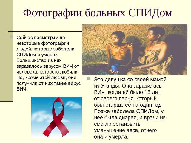 Фотографии больных СПИДом Сейчас посмотрим на некоторые фотографии людей, кот...