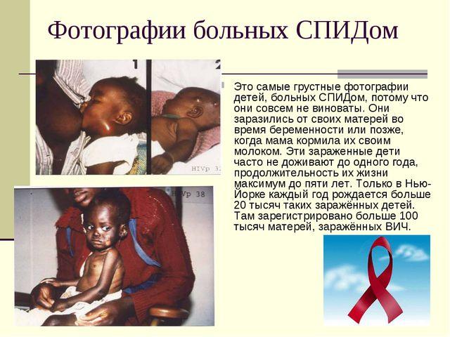 Фотографии больных СПИДом Это самые грустные фотографии детей, больных СПИДом...